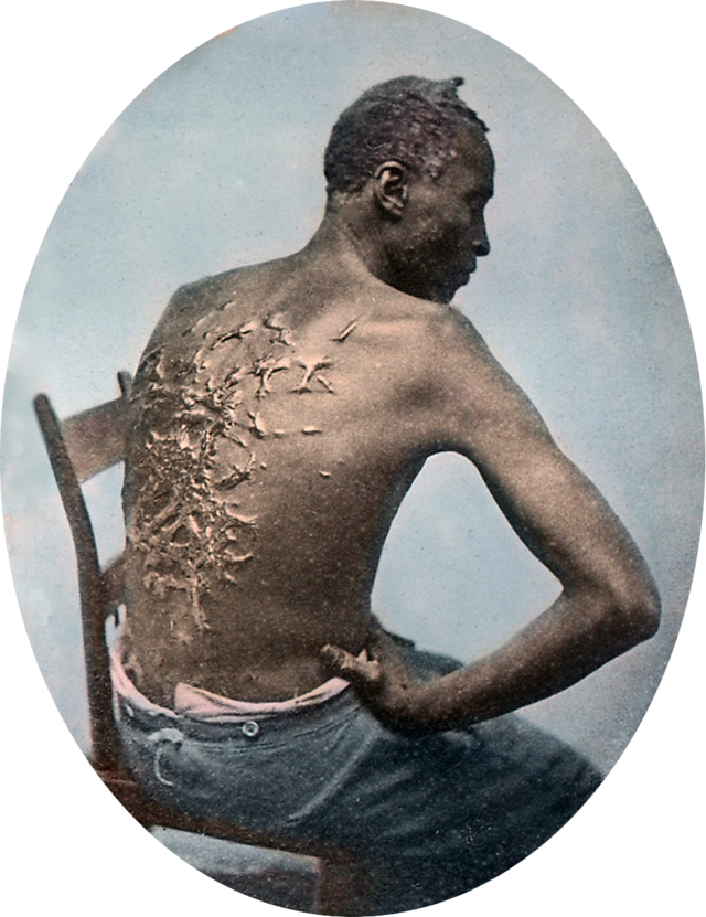 Gordon_scourged_back,_colored_slide_2.png